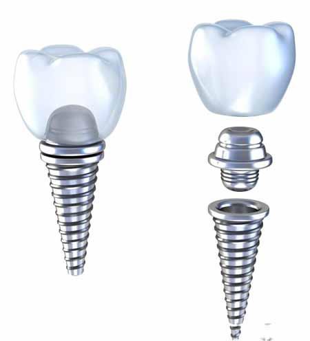 Иллюстрация зубного имплантата с титановым абатментом
