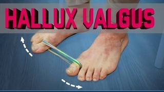 Hallux valgus. Как избавиться от косточки на большом пальце ноги без операций!