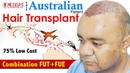 Best Safe Hair Transplant | AUSTRALIAN Patient Experience| MEDISPA Hair Restoration | Dr Suneet Soni