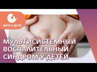 🧒 Признаки мультисистемного синдрома у ребенка. Мультисистемный синдром. ГК Мать и дитя. 18+