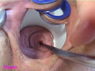 Vinam cervix fucking anal ass fisting big tits deepthroat hard fisting with dildo blowjob cervix dildo фистинг трэш harhcore