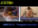 ABR: CP Child Development Progress Overview - Quadriplegic Cerebral Palsy Child GMFCS 5