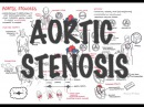 Aortic Stenosis - Overview (signs and symptoms, pathophysiology, treatment)