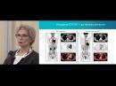 Использование позитронно эмиссионной томографии в онкогематологии