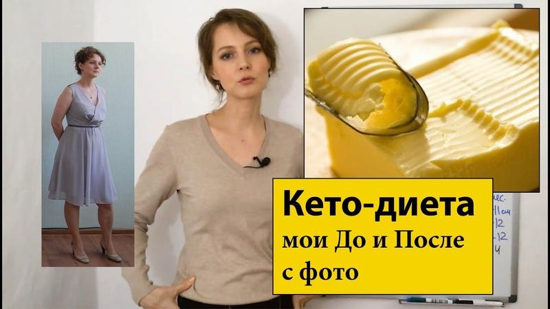 До и после на кето-диете | Результаты с фото