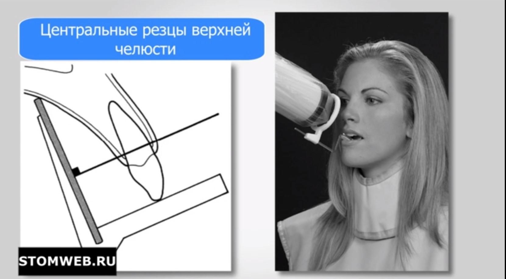 Контактные рентгенограммы