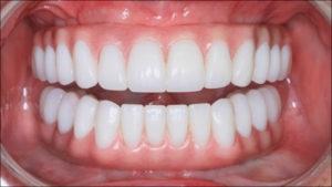Процедуры имплантации зубов способны сделать вашу улыбку незабываемой!