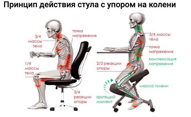 Что такое коленный стул?, изображение №1